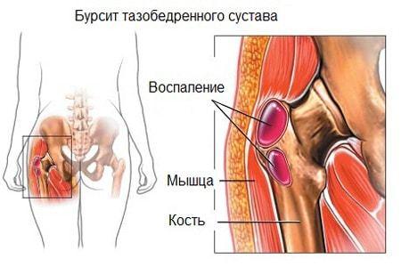Тазобедренный бурсит: симптомы, лечение сустава медикаментозно и народными средствами