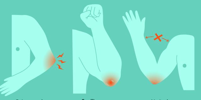 Бурсит локтевого сустава: симптомы (ФОТО) и лечение воспаления бурсы локтя