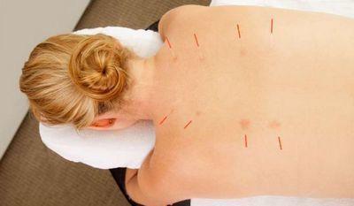 Иглоукалывание при остеохондрозе шейного отдела: отзывы о лечении