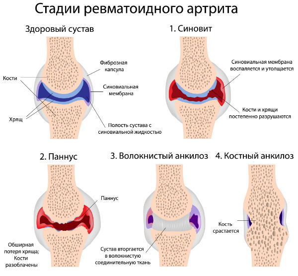 Метипред при ревматоидном артрите: как принимать для лечения