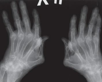 Рентген при артрите: признаки разных стадий поражения суставов